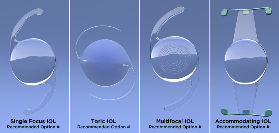 Intraocular Lenses (IOL)